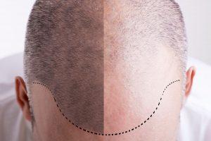 Scalp-micropigmentation-procedure